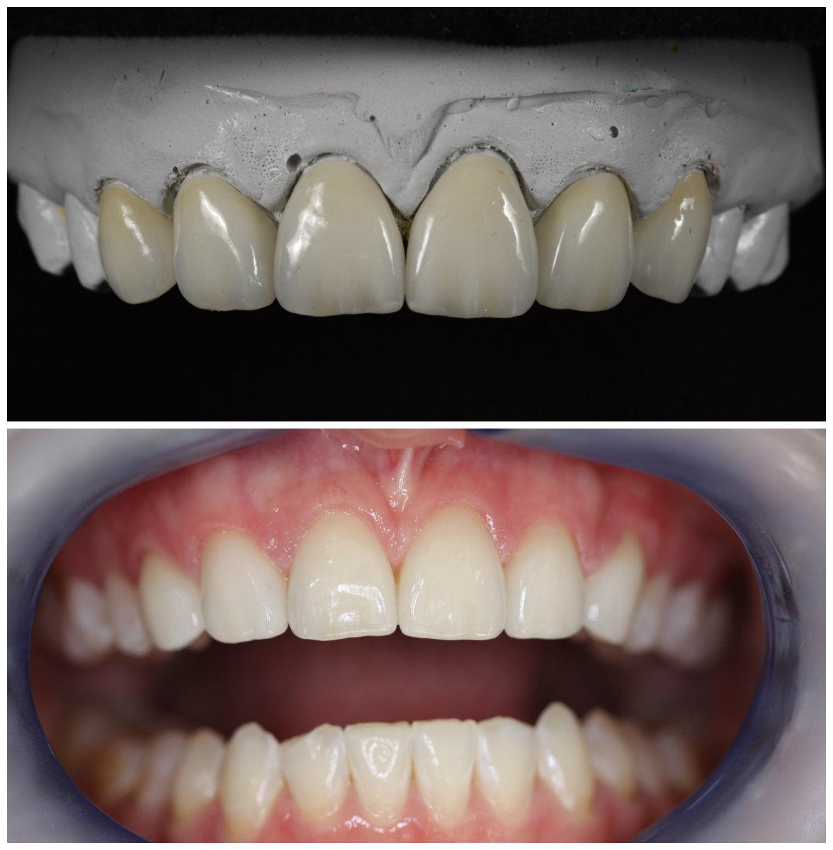 Emax Dental Crowns For Front Teeth - TeethWalls