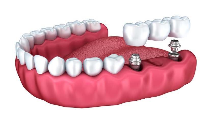 dental crown and bridge