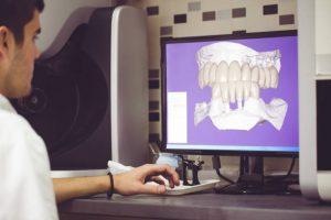 2D 3D smile design software.